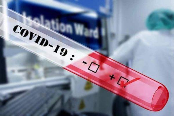 covid-19-antibody-lab-test